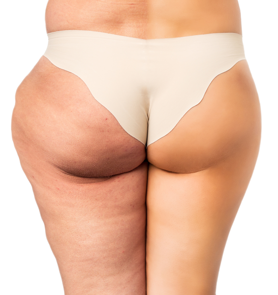 Information on lipedema